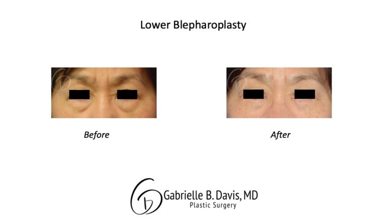 lower blpeharoplasty before & after