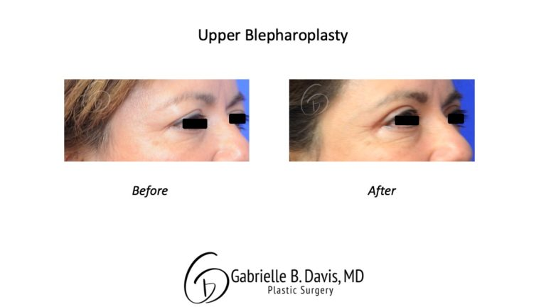 upper blpeharoplasty before & after