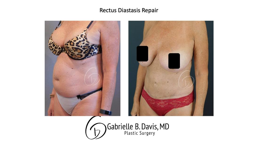 Rectus Diastatis Repair before & after