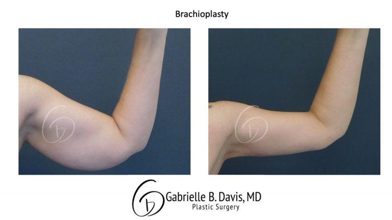 Brachioplasty before & after