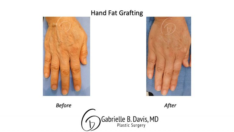 hand fat grafting before & after