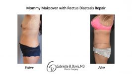 Mommy Makeover & Rectus Diastasis Repair before & after