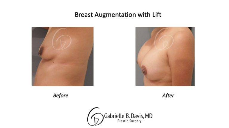 Breast Augmentation + Lift before & after