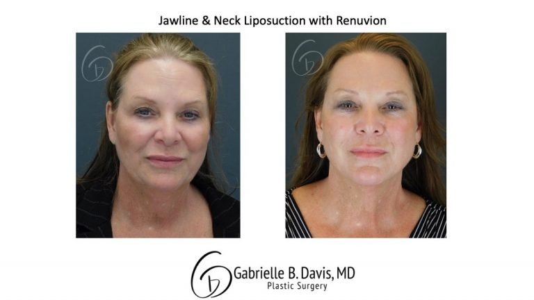Jawline & Neck Liposuction with Renuvion before & after